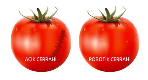 robotik_cerrahi_fayda